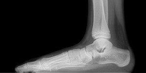 Painful Flat Foot