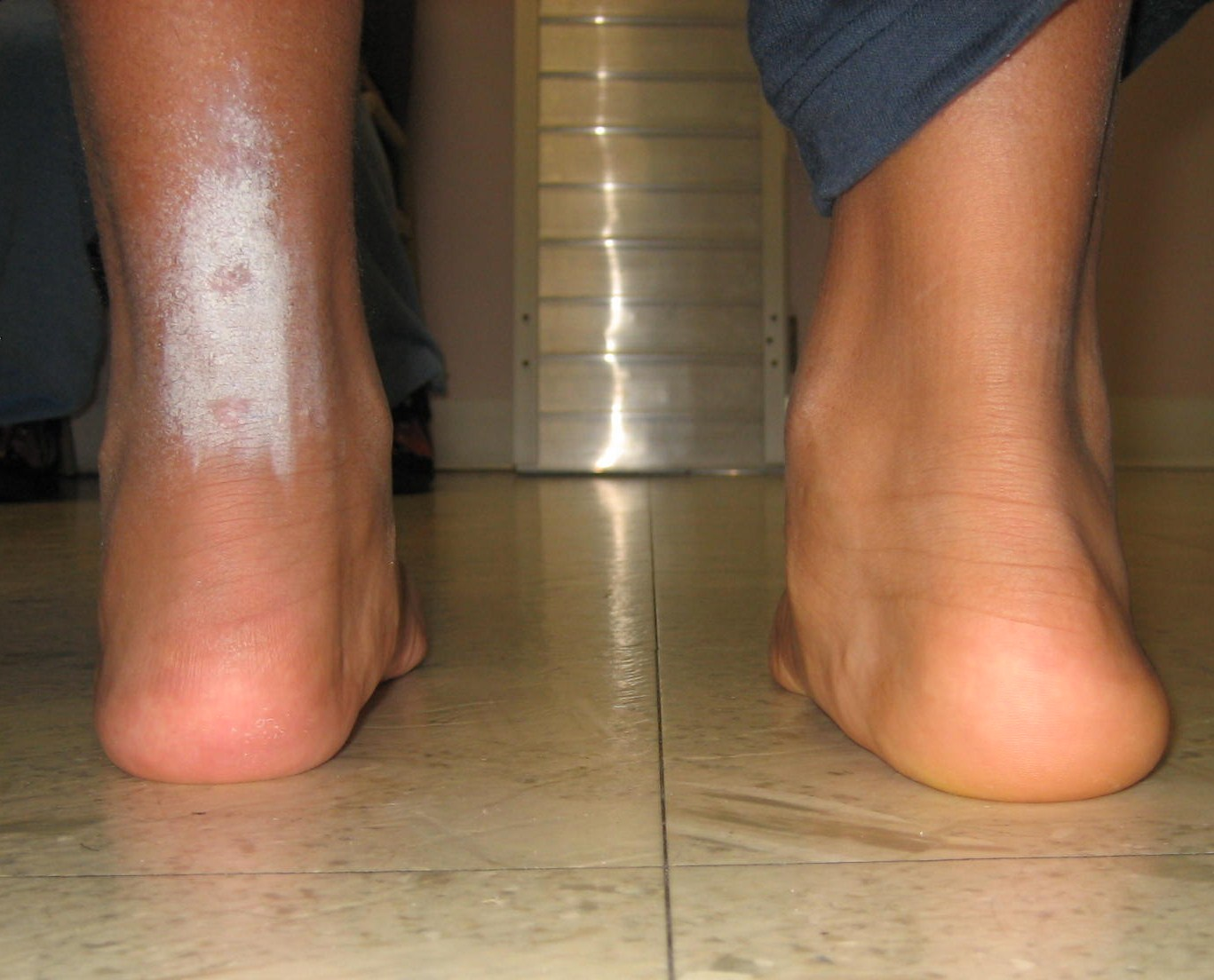 Pediatric Foot and Ankle Surgery