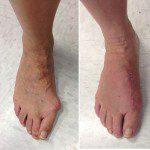 Weightbearing 4 weeks after Lapidus procedure