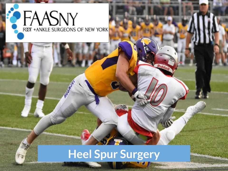 Heel Spur Surgery   Foot and Ankle Surgeons of New York